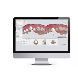 indirectbondingstudio-product_4D_digital