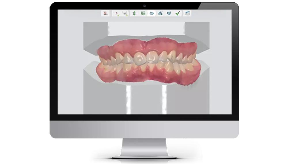 Ortho system 4d digital