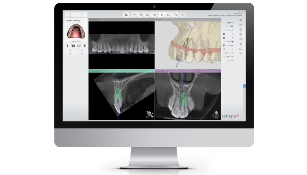 implant studio 4d digital